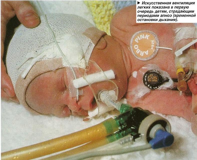 Искусственная вентиляция легких показана в первую очередь детям