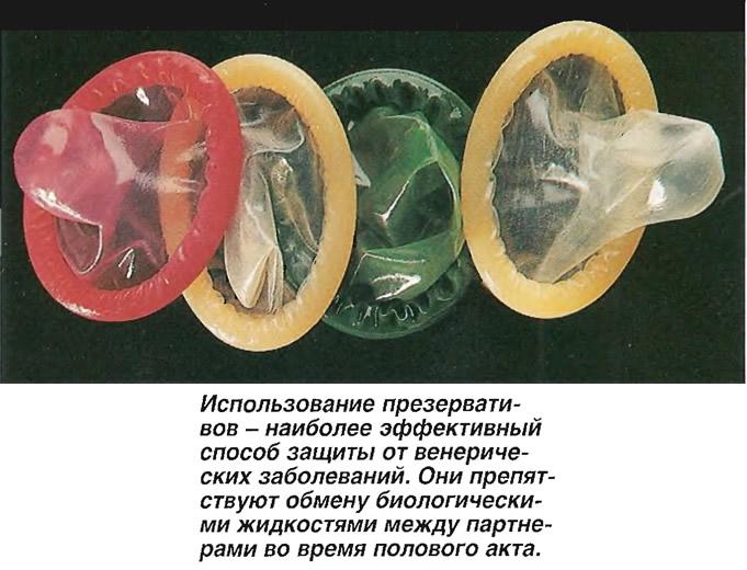 Использование презервативов - наиболее эффективный способ защиты