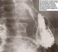 Использование сульфата бария как контрастного вещества при рентгенографии