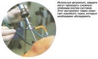 Используя артроскоп, хирурги могут проводить сложные операции внутри суставов