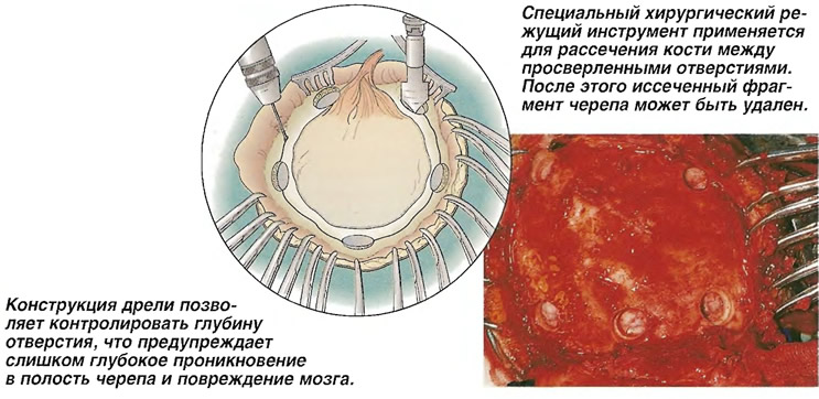Иссечение костного лоскута