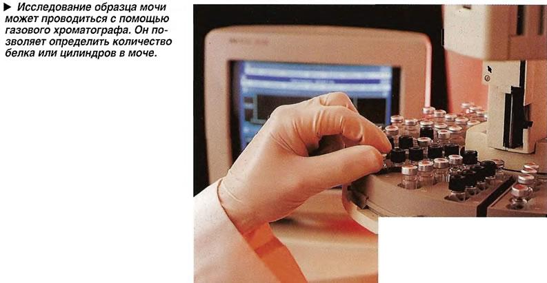 Исследование образца мочи может проводиться с помощью газового хроматографа