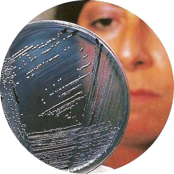Исследование сальмонеллы, растущих на агаре в чашках Петри для определения их типа и штамма