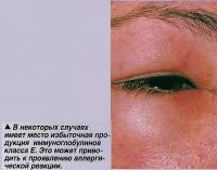 Избыточная продукция иммуноглобулинов класса Е.