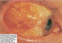 Изменение цвета склер является характерным признаком желтухи