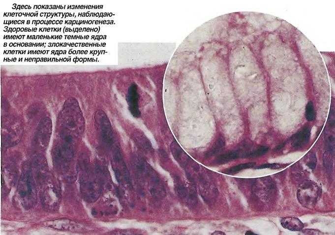 Изменения клеточной структуры, наблюдающиеся в процессе карциногенеза