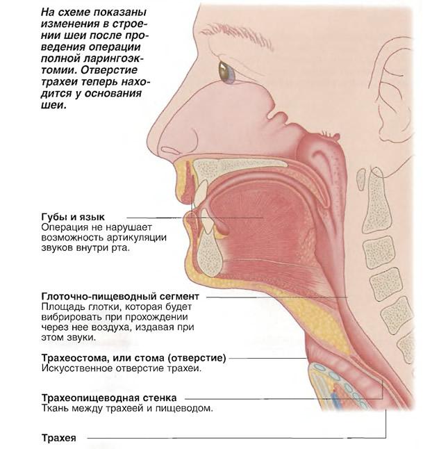 Изменения в строении шеи после полной ларингоэктомии