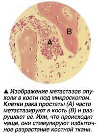 Изображение метастазов опухоли в кости под микроскопом