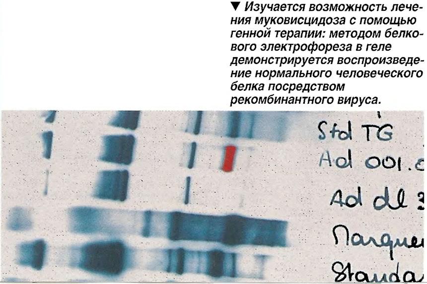 Изучается возможность лечения муковисцидоза с помощью генной терапии