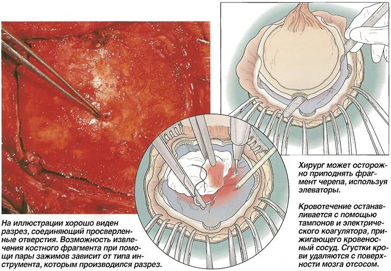 Извлечение костного лоскута
