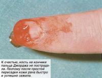 К счастью, кость на кончике пальца Джорджа не пострадала