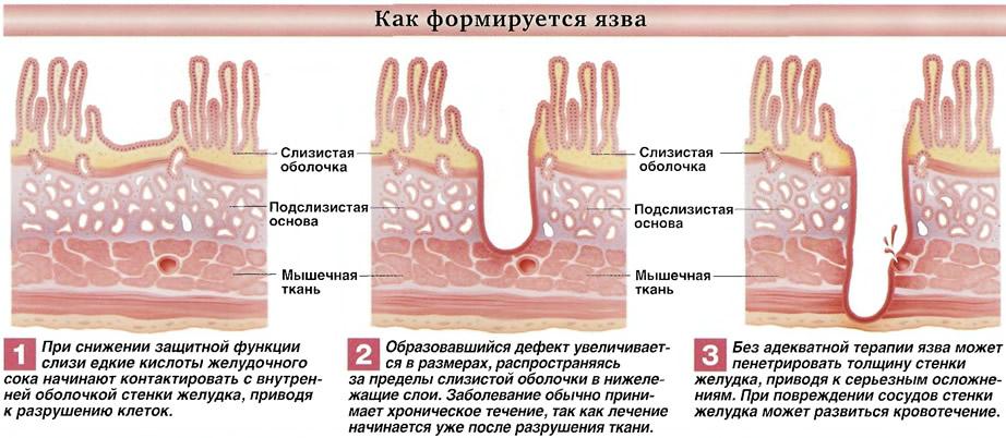 Как формируется язва