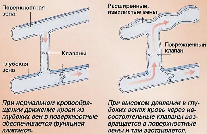 Как образуются варикозные вены