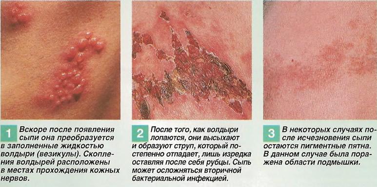 Как развивается сыпь опоясывающего лишая