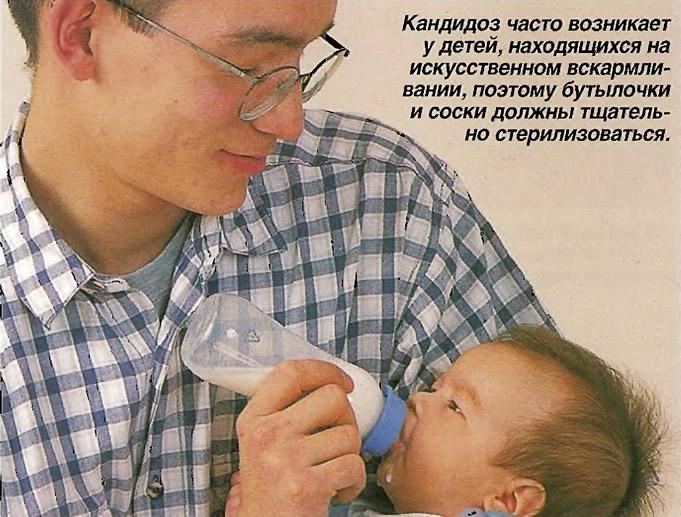 Кандидоз часто возникает у детей, находящихся на искусственном вскармливании