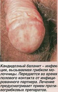 Кандидозный баланит - инфекция, вызываемая грибком молочницы