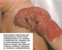Капиллярная гемангиома на левом плече инфицировалась