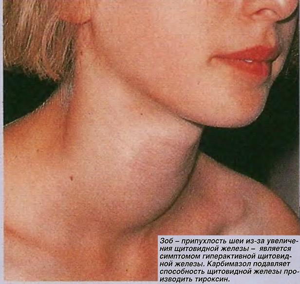 Карбимазол подавляет способность щитовидной железы производить тироксин