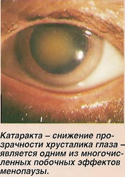Катаракта - снижение прозрачности хрусталика глаза