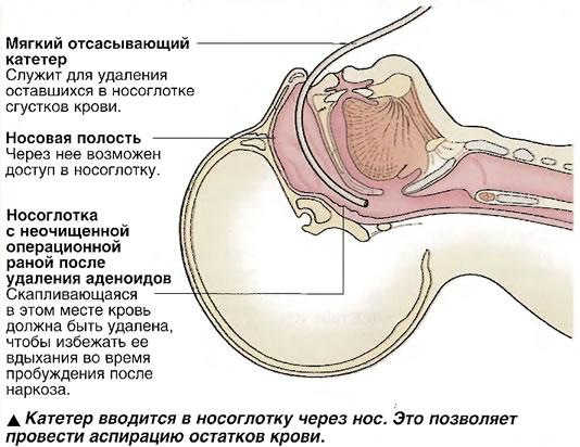 Катетер вводится в носоглотку через нос