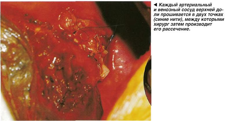 Каждый артериальный и венозный сосуд верхней доли прошивается в двух точках