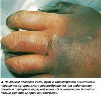 Кисть руки с характерными симптомами нарушения кровообращения