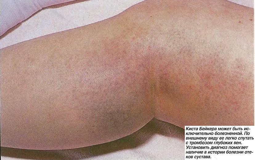 Киста Бейкера может быть исключительно болезненной