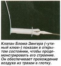 Клапан Блома-Зингера показан в открытом состоянии