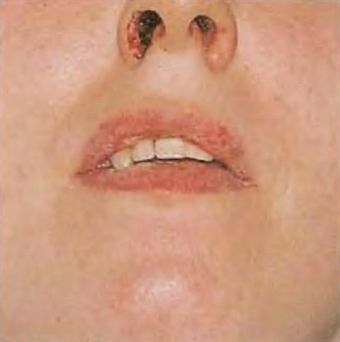 Классический симптом столбняка - сжатые мышцы челюсти - тризм челюсти