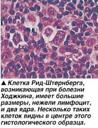 Клетка Рид-Штернберга имеет большие размеры, нежели лимфоцит, и два ядра