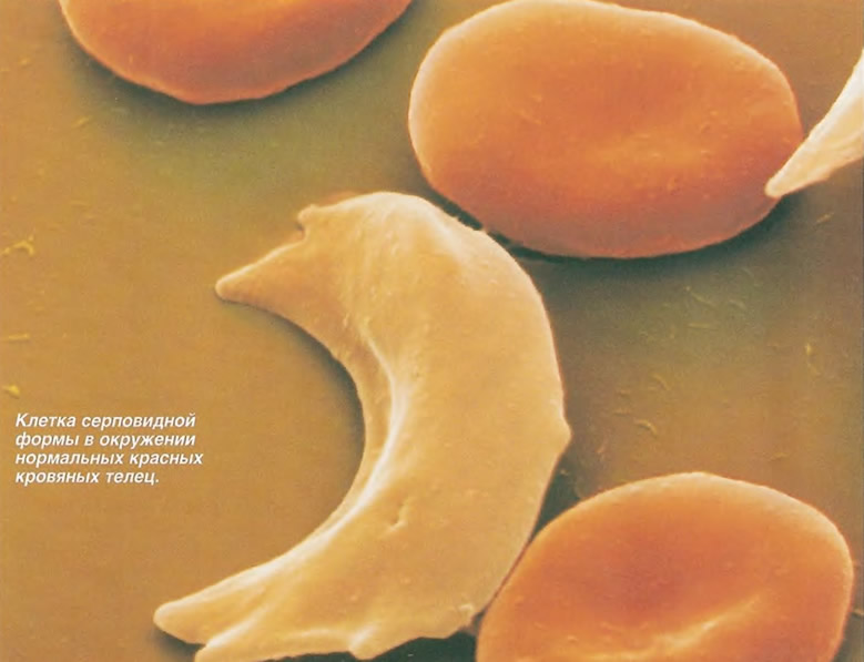 Клетка серповидной формы в окружении нормальных красных кровяных телец