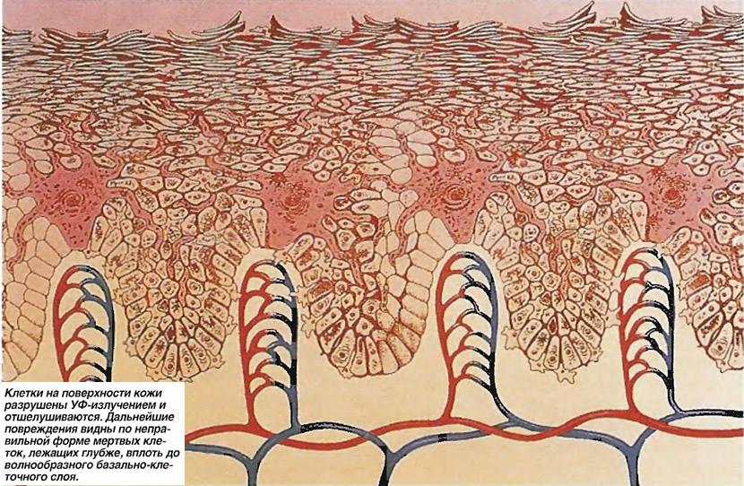 Клетки на поверхности кожи разрушены УФ-излучением и отшелушиваются