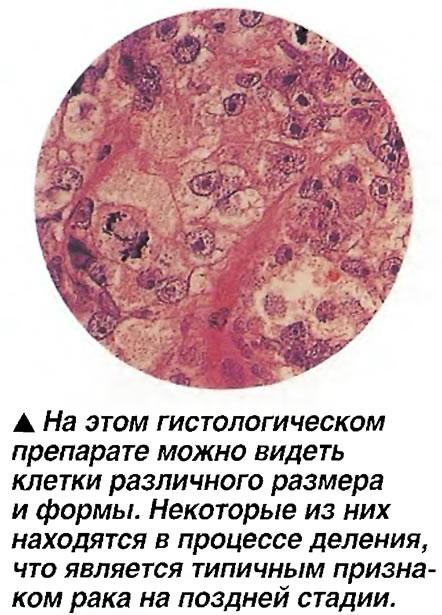 Клетки различного размера и формы