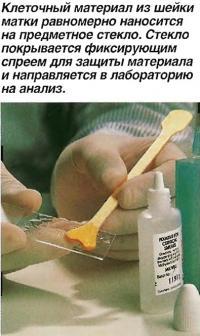 Клеточный материал из шейки матки равномерно наносится на предметное стекло