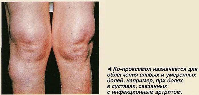 Ко-проксамол назначается для облегчения слабых и умеренных болей