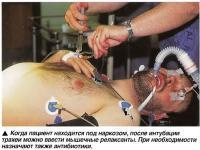Когда пациент находится под наркозом, после интубации трахеи можно ввести мышечные релаксанты