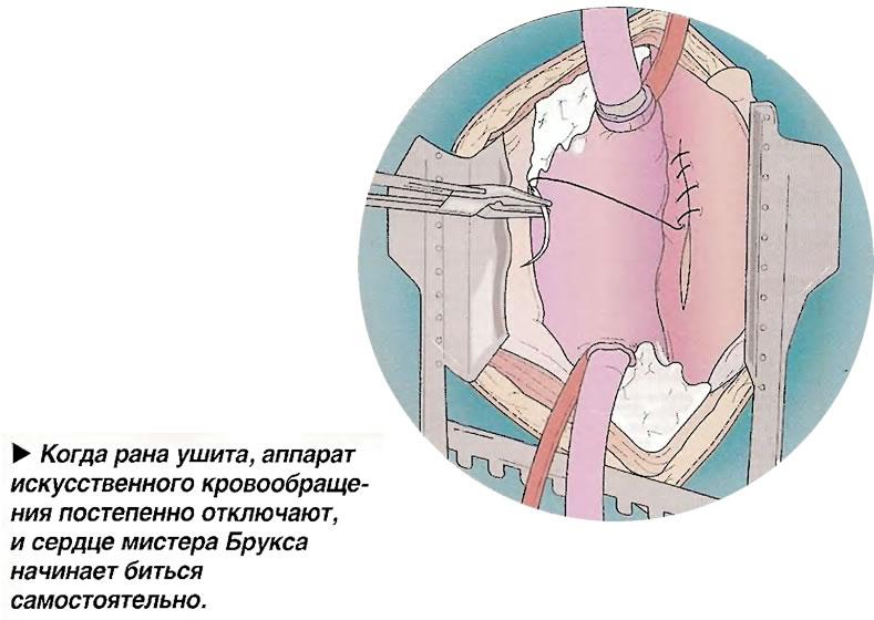 Когда рана ушита, аппарат искусственного кровообращения постепенно отключают