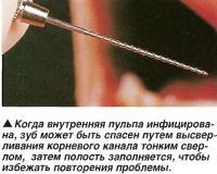 Когда внутренняя пульпа инфицирована, зуб может быть спасен
