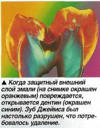 Когда защитный внешний слой эмали овреждается, открывается дентин