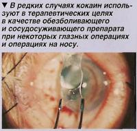Кокаин используют при некоторых глазных операциях и операциях на носу