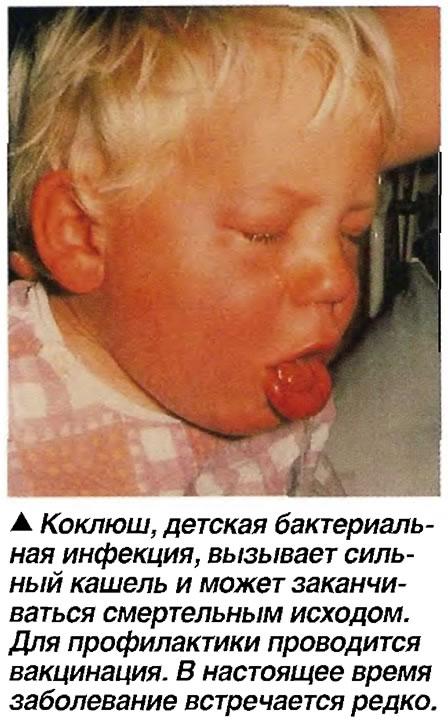 Коклюш, детская бактериальная инфекция