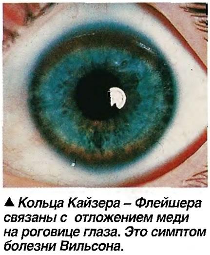 Кольца Кайзера - Флейшера связаны с отложением меди на роговице глаза.