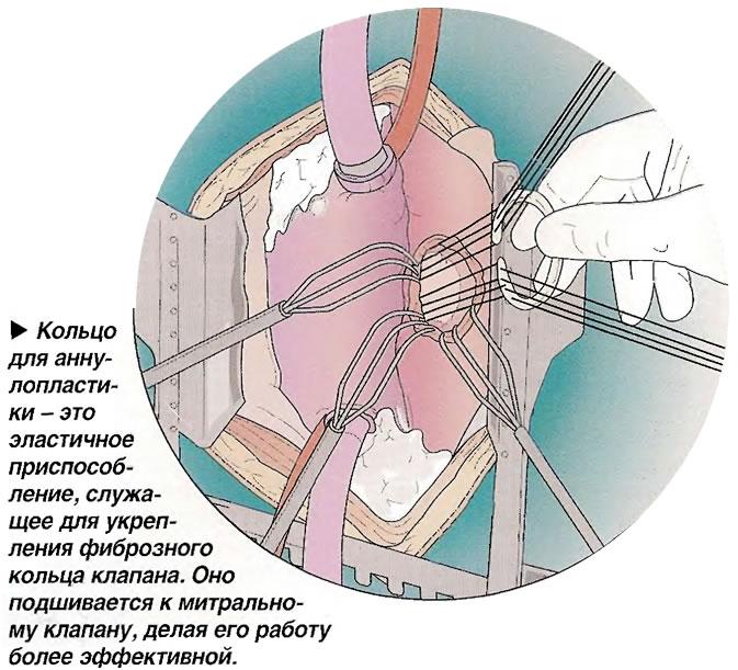 Кольцо для аннулопластики