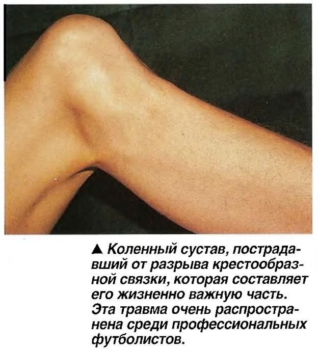 Коленный сустав, пострадавший от разрыва крестообразной связки