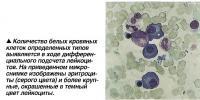Количество белых кровяных клеток выявляется в ходе дифференциального подсчета лейкоцитов