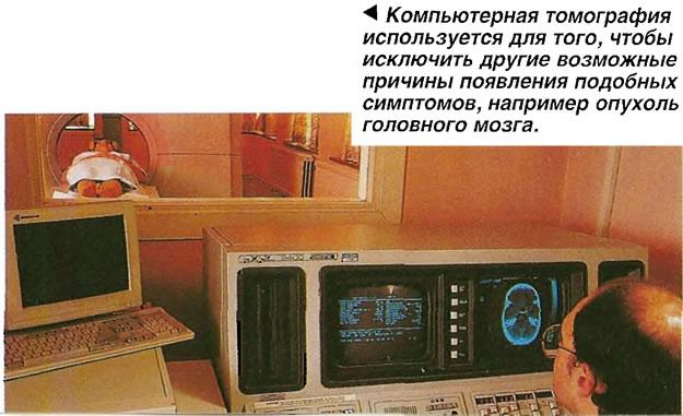 Компьютерная томография используется для того, чтобы исключить другие возможные причины