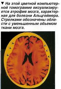 Компьютерная томография помогает в диагностике болезни Альцгеймера
