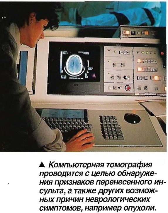 Компьютерная томография проводится с целью обнаружения признаков перенесенного инсульта