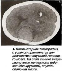 Компьютерная томография с успехом применяется для диагностики опухолей головного мозга.
