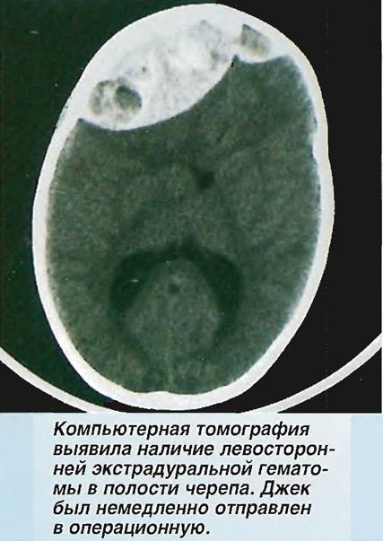 Компьютерная томография выявила наличие левосторонней экстрадуральной гематомы